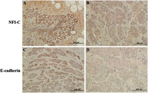 Expression of NFI-C and E-cadherin protein in malignant human breast tissue by immunohistochemistry. (A) Expression of NFI-C in a benign breast ductile. (B) Expression of NFI-C in a malignant ductal carcinoma. (C) Expression of E-cadherin in early stage tumor cells. (D) Expression of E-cadherin in a malignant ductal carcinoma. Scale bars = 200 μm.