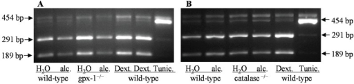 XBP1 mRNA splicing in the livers of H2O or ethanol (alc.)-fed wild-type and catalase−/− or gpx-1−/− transgenic mice was determined by RT-PCR and Pst1 restriction enzyme digestion. Wild-type mice injected with dextrose as control (Dext.) or tunicamycin (Tunic.) were used as controls. 454 bp, and 291bp and 189 bp amplicons refer to spliced (Pst1-resistant) and unspliced XBP1, respectively.