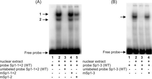 Electrophoretic mobility shift assays with probe Sp1-1+2 (A) and probe Sp1-3 (B).Probe Sp1-1+2 − double-stranded oligonucleotide representing the -646/-611 sequence of the hFCGRT promoter, containing the potential transcriptional regulatory Sp1 motifs at positions -641 and -635; probe Sp1-3 − ds-oligonucleotide corresponding to the sequence -320/-293 of the hFCGRT promoter containing a putative Sp1 binding site at position -313. Probes were end-labeled with [γ32P]ATP] and incubated with nuclear extract (12 μg) in the absence of competitor (A and B, lanes 2) or in the presence of a 100-fold molar excess competitor: Sp1-1+2(WT)–unlabeled wild-type probe Sp1-1+2 (A, lane 3), Sp1-3(WT)–unlabeled wild-type probe Sp1-3 (B, lane 3), mSp1-1+2 – unlabeled probeSp1-1+2 containing mutation in the Sp1 sequence at positions -641 and -635 (A, lane 4), mSp1-2 – unlabeled probe Sp1-1+2 containing mutation in the Sp1 sequence at position -635 (A, lane 5), mSp1-3 – unlabeled probe Sp1-3 containing mutation in the Sp1 sequence at position -313 (B, lane 4). Labeled probe Sp1-1+2(WT) alone (A, lane 1), labeled probe Sp1-3(WT) alone (B, lane 1). DNA-protein complexes were resolved on 5% non-denaturing polyacrylamide gels and analyzed in a phosphor imager (Typhoon 8600) using ImageQuant software (Molecular Dynamics). Positions of specific DNA-protein complexes are indicated by arrows.