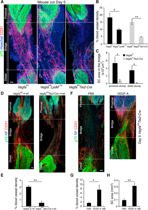 Inactivation of Vegfa in Macrophages Inhibits Vascularization of the Nerve Bridge after Nerve Transection(A) Representative images of longitudinal sections of injured sciatic nerves from Vegfafl/fl (control), Vegfafl/flLysmCre, and Vegfafl/flTie2-Cre mice, Day 5 after transection, immunostained to detect ECs (CD31+, red) and SCs (p75NTR+, green). Scale bar, 50 μm.(B) Quantification of (A) showing the proportion of CD31-positive area per bridge area and shows that the vascularization of the bridge is significantly reduced in mutants animals (n = 5).(C) Quantification of (A) showing the area of SC influx from the proximal and distal stumps in Vegfafl/fl versus Vegfafl/flTie2-Cre animals (n = 5).(D) Representative images of longitudinal sections of injured sciatic nerves from wild-type that have received bone marrow from Vegfafl/fl (control) or Vegfafl/flTie2-Cre mice immunostained to detect ECs (CD31+, red), SCs (p75NTR+, green), and axons (NF+, blue), Day 5 after transection. Scale bar, 100 μm.(E) Quantification of (D) showing the proportion of CD31-positive area per bridge area (n = 3 for each group).(F) Representative images of longitudinal sections of injured sciatic nerves of Vegfafl/flTie2-Cre mice, Day 5 after transection following injection of PBS or VEGF-A188 into the bridges at Day 4. Scale bar, 100 μm.(G and H) Quantification of (F) showing the blood vessel density (G) or area of infiltrating SCs (H) (n = 4). For reconstruction of longitudinal sections shown in (A), (D) and (F), multiple images from the same sample were acquired using the same microscope settings.Graphs show mean value ± SEM. See also Figure S6.