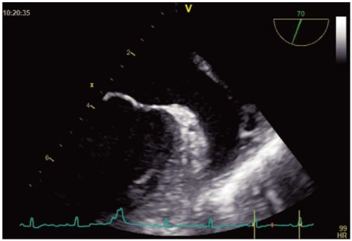Transesophageal echocardiogram showing a left atrial appendage without spontaneous echo contrast in a patient.