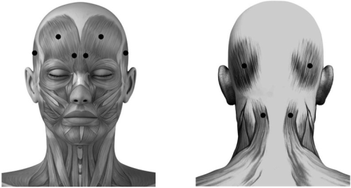 Schematic sites of fixed-sites injection. These sites (●) are respectively located at frontal and occipital belly of occipitofrontalis, corrugator supercilii, temporalis and superior part of trapeziue muscle.