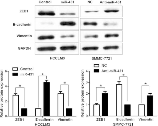 MiR-431 inversely regulates ZEB1 expression and EMT in HCC cells. Representative western blot indicated that up-regulation of miR-431 decreased ZEB1 expression and inhibited EMT with elevated expression of E-cadherin and reduced expression of vimentin in HCCLM3 cells. Meanwhile, down-regulation of miR-431 increased ZEB1 expression and promoted EMT in SMMC-7721 cells. n = 6, ∗P < 0.05.