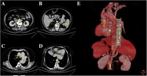 Thoracic and abdominal enhanced computed tomography demonstrating (a) A left IVC posterolateral to the abdominal aorta, converged by two renal veins (yellow arrow). b The left IVC gradually becomes thin, and continues with an enlarged hemiazygos vein (yellow arrow). Visceral position is normal. c The tiny azygos vein can be seen anterior to the vertebra, then crosses over the aorta and drains into the R-SVC (yellow arrow). The hemiazygos vein continues as the left superior intercostal vein via the accessory hemiazygos vein. The left superior intercostal vein eventually drained into the PLSVC at the level of the pulmonary artery bifurcation (red arrow). d In the left atrioventricular groove, a huge CS connected with the RA. e Reconstructive 3D imaging gives a better view of this anomaly. Ao: aorta; Az: azygos vein; CS: coronary sinus; HAV: hemiazygos vein; IVC: inferior vena cava; LV: left ventricle; PA: pulmonary artery; PLSVC: persistent left superior vena cava; RA: right atrium; R-SVC: right superior vena cava; RV: right ventricle