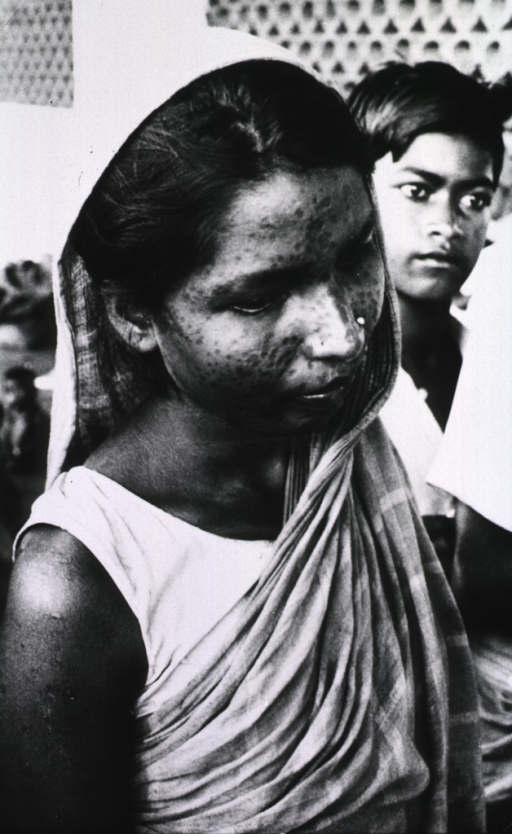 <p>A young woman with a pockmarked face and arms resulting from smallpox.</p>