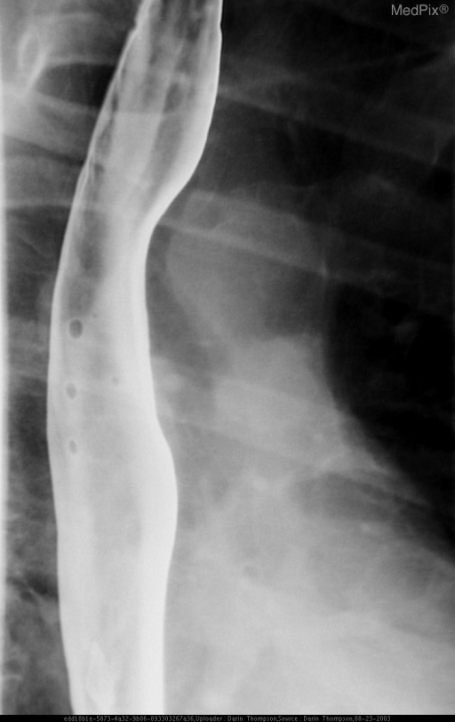 Multiple upright LPO doulble contrast images from a barium swallow exam demonstrate a medium/large ulceration with surrounding edema in the distal esophagus.