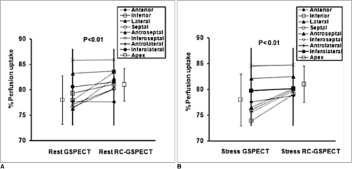 Comparison of percentage of tracer uptake between use of RC-GSPECT and GSPECT in different left ventricular segments for both rest phase (A) and stress phase (B) study is shown. RC-GSPECT = respiratory-cardiac gated single-photon emission computed tomography, GSPECT = gated myocardial perfusion single-photon emission computed tomography.