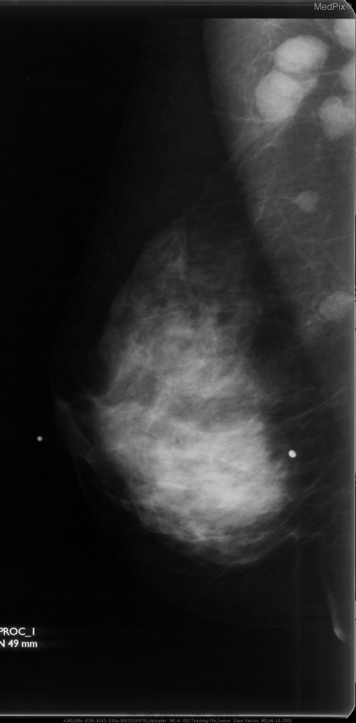 Note the enlarged, dense axillary lymph nodes.  This is Non-Hodgkins Lymphoma.