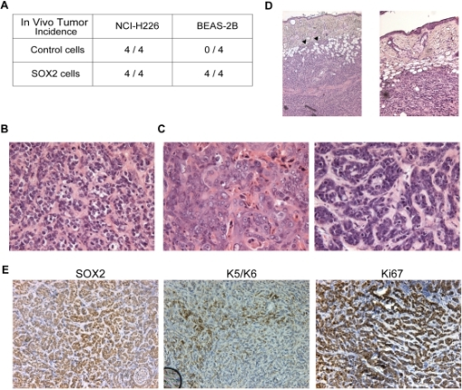 Consequences of Sox2 over-expression in vivo.A. Tumor incidence upon subcutaneous implantation of human lung squamous control- and SOX2-transduced cell lines in nude mice. For each cell line, the number of tumors that developed is represented with respect to the number of injections for each cell type (control or SOX2-transduced, n = 4 injected animals each). Tumor incidence is unchanged for the NCI-H226 highly tumorigenic cell line, whereas BEAS-2B cells become tumorigenic upon Sox2 over-expression. B. Hematoxylin and Eosin (H&E) staining of a representative area of a BEAS-2B-Sox2 subcutaneous tumor (magnification = 100×). A majority of the tumor area (around 80%) has typical traits of poorly differentiated basaloid variants of squamous cell carcinoma. C. H&E staining of representative areas of the same BEAS-2B-Sox2 subcutaneous tumor as in panel B (magnification = 100×). Around 20% of the tumor area has typical traits of poorly to moderately differentiated squamous cell carcinoma, with individual cell keratinization. D. H&E staining of one BEAS-2B-Sox2 subcutaneous tumor (magnification = 50×). In this case, local tumor cell invasion into the dermis was observed (arrowheads). E. Immunohistochemistry for SOX2, Keratins 5/6 and Ki67 (left, middle and right panels, respectively; magnifications = 200×). Tumors homogeneously express SOX2 and Ki67 and heterogeneously express Keratins 5/6, which are squamous cell differentiation markers.