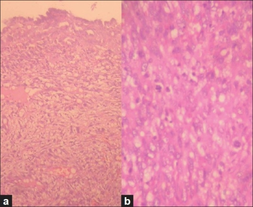 (a) The endocervical epithelium and stroma showing malignant features (hematoxylin and eosin, ×100), (b) Deeper stroma showing endometrial stromal sarcoma features (hematoxylin and eosin, ×400)