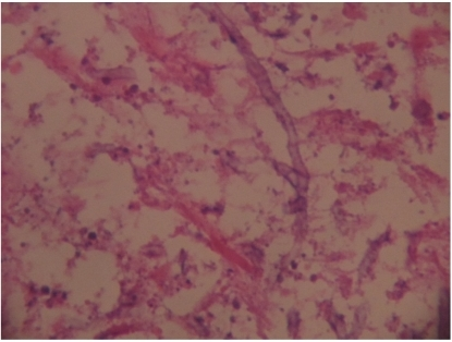 Histopathology photomicrograph. The cerebellar lesion shows the typical branching septate hyphae of Aspergillus.