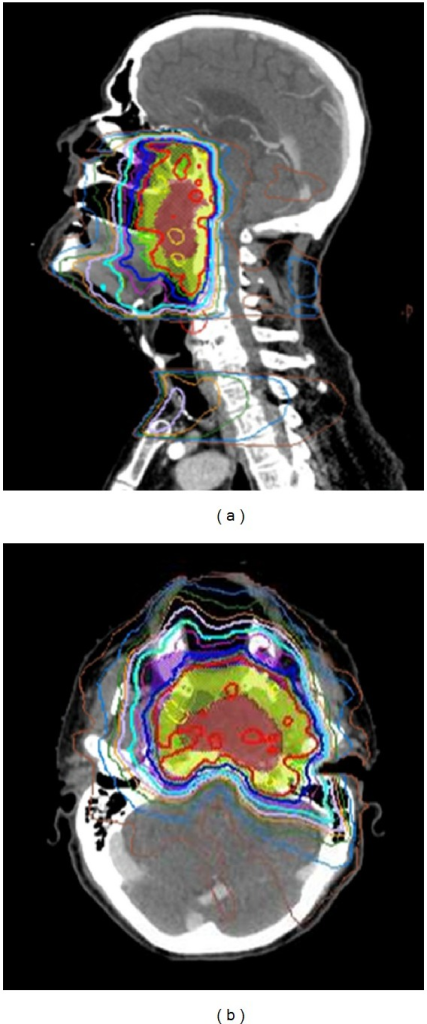 IMRT plan for the same patient above with a locally advanced nasopharyngeal cancer demonstrating sharp dose gradient at the level of the skull base, clivus, and upper cervical spine in close proximity to temporal lobe brain, brainstem, and spinal cord. CBCT was used for daily alignment to ensure setup accuracy (see Figure 3).