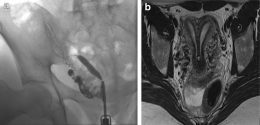 Uterine Septum Hsg A 31-year-old patient:...