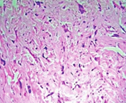 Section showing pleomorphic cells scattered between the collagen bundles (H and E, ×200)
