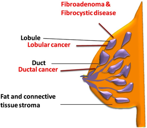 Schematic illustration of normal breast structure.The main parts of the breast are lobules, ducts, and stroma (fatty tissue and connective tissue surrounding the ducts and lobules). Most breast cancers begin in the ducts (ductal), some in the lobules (lobular) and the rest in other tissues. Fibrocystic breast disease and fibroadenoma usually develop within the breast lobules.