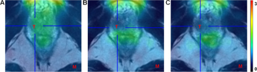 PET/MRI imaging in locally confined PCa. PET/MRI fusion image of the first (A), second (B) and third (C) acquisition time interval in a representative patient (patient 4). The uptake of 18F-MK-9470 in the local tumour is comparable to the uptake in the surrounding healthy prostatic tissue. T, tumour; M, muscle. Data are scaled from 0 to 3 SUV.