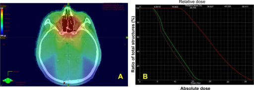 Color wash and dose-volume histogram.Note: The radiation dose distribution at the optic chiasm (red solid line), and the left (green solid line) and right (purple solid line) optic nerves are shown in a color wash (A) and dose-volume histogram (B).