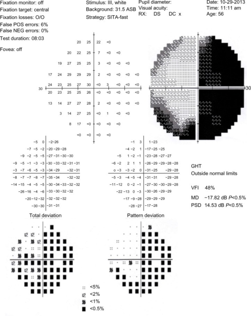 Visual field test.Note: Temporal hemianopsia and a nasal peripheral visual field defect were diagnosed during the right eye visual field study.Abbreviations: O/O, 0%; POS, positive; NEG, negative; SITA-fast, Swedish Interactive Threshold Algorithms; RX, correction of refractive errors; DS, Diopter sphere; DC, Diopter cylinder; GHT, Glaucoma Hemifield Test; VFI, visual field index; MD, mean defect; PSD, pattern standard deviation.