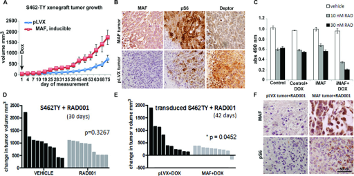 MAF enhances tumor growth in a xenograft model, and enhances response to RAD001(A) Growth curve shows average tumor volumes from S462-TY cells infected with vector (pLVX) or inducible MAF and injected into the right flanks of Balb/c nude mice (n=8 – 10 per group). Doxycycline (Dox) was administered after cell implantation. (B) Immunohistochemical staining of pLVX vector control and MAF expressing tumor paraffin sections for MAF, pS6 and DEPTOR. Brown indicates DAB reaction product.(C) Four day MTS assay using S462TY MPNST cells, comparing control and doxycycline inducible MAF (iMAF) expression with exposure to RAD001 at 10 or 30nM, showing enhanced drug effect with MAF expression. (D) Waterfall plot of change in tumor volume of S462-TY xenografts during treatment with either vehicle control or 10 mg/kg RAD001 showing absence of significant response of this MPNST cell line to RAD001 in vivo. (E) Waterfall plot of significant (p = 0.05) change in tumor volume of S462-TY xenografts transduced with inducible MAF (MAF) when 10 mg/kg RAD001 is also present. (F) Immunohistochemical staining of pLVX vector control and MAF expressing tumor paraffin sections with anti-MAF and anti-pS6K. Reaction product is brown.