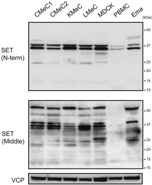 SET protein expression in canine cells. SET protein expression in canine cells wasanalyzed by immunoblotting. Two types of anti-SET antibodies against 3–18 aa of humanSETα (N-term) and 175–215 aa of human SETα (Middle) were used. VCP was used as aloading control.