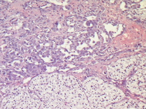 Clear cells as hyperplastic adrenal tissue (bottom) and neoplastic vascular channels(top) with malignant endothelial epithelioid cells (hematoxylin-eosin ×32).