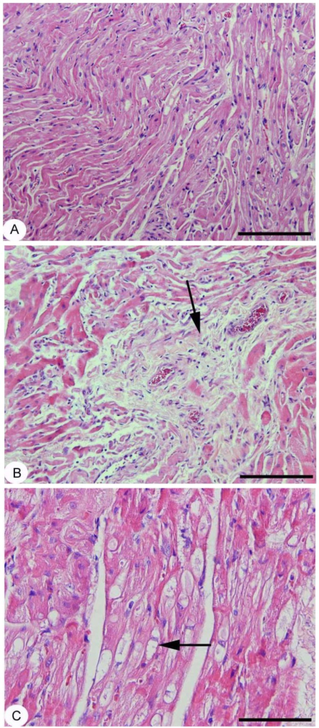 Atrial myocardial interstitial fibrosis.A: control heart section with no pathological interstitial collagen depositions; B: aged heart section with a focus of perivascular interstitial fibrosis (arrow); C: aged heart section with a focus of myocytolisis (arrow). Hematoxylin and Eosin staining. Original magnification: A and B ×10, C ×20 with scale bar in A and B 500 µm and in C 200 µm.
