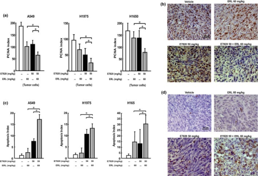 Combination treatment with E7820 and erlotinib (ERL) inhibited tumor cell proliferation and enhanced apoptosis in human non-small-cell lung carcinoma xenograft models. Mice (n = 5, per group) were treated with vehicle, E7820 (50 mg/kg) and/or erlotinib (60 mg/kg) for 7 days. The tumors were resected and processed for immunohistochemical evaluation. (a) Columns indicate means of percentages of proliferating cell nuclear antigen (PCNA)-positive cells/mm2. *P < 0.05. (b) representative results are shown with PCNA staining in H1975 xenografted tumor. (c) Columns indicate means of apoptosis-index in tumor cells. *P < 0.05. (d) Representative results are shown with TUNEL staining in H1975 xenograft tumor.