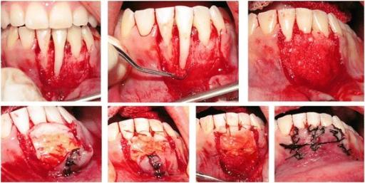 xenograft bone transplantation method essay