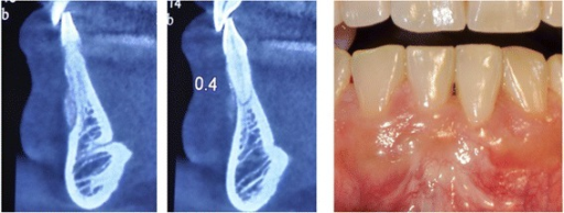 Remnants of xenograft bone particles over denuded root (left) in comparison to intact neighboringsite(right) at six-year follow up. Clinical view represents full coverage of the defect.