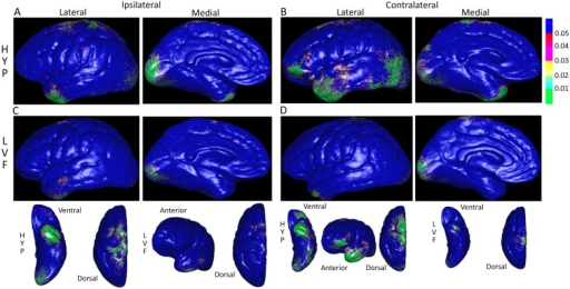 Color-coded probability or P-maps depicting the spatial pattern of significantly reduced gray matter thickness in patients with respect to controls.Lateral and medial views of cerebral hemisphere ipsilateral (A & C) and contralateral (B & D) to the SOZ in patients with hypersynchronous (HYP, top row) versus patients with low voltage fast (LVF, bottom row) onset seizures. P-maps in bottom row are the same as in rows above, but reoriented to more clearly show gray matter thickness changes on ventral, dorsal, and anterior aspects. In upper right, P-values scaled such that areas shaded green correspond to P<0.01 and blue P>0.05 (not significant).