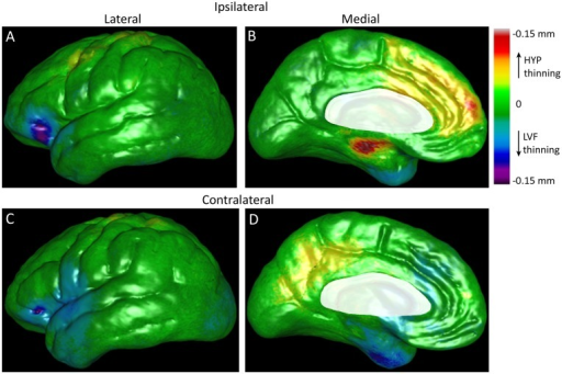 Beta maps illustrating the magnitude of the interaction between ictal EEG onset pattern and epilepsy duration on cortical gray matter thickness after controlling for age and gender.Lateral (left column) and medial surfaces (right column) of cerebral hemisphere ipsilateral (top row) and contralateral to the SOZ (bottom row). Cortical areas colored yellow, orange, and red indicate thinner GM (in mm) per year of epilepsy in patients with HYP onset seizures, whereas areas colored blue, indigo, and violet correspond to reduced GM per year of epilepsy in patients with LVF onset seizures. Shades of green depict areas of minimal or no thinning per year of disease (color-coded scale upper right corner). Permutation tests correcting for multiple comparisons were significant (ipsilateral: p = 0.037, contralateral: p = 0.037). Areas masked in white are brain areas not applicable for this analysis.