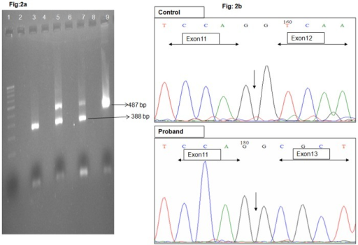 2% Agarose gel electrophoresis showing cDNA amplification of exon 11–13 of IQCB1.Lane 1-100bp ladder, Lane 3- Affected index case, Lane 5 & 7—Carrier parents, Lane 9—Control, Lane 2, 4, 6, 8—empty wells Fig 2b Eletrophoretogram trace showing the amplified cDNA of control and proband. In proband exon 11 is followed by exon 13 and exon 12 is completely deleted, whereas in control, exon 11, 12 and 13 is continuous. The end of exon 11 is marked in both the phoretograms.