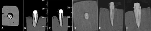 CBCT scans of teeth in New tom VGI system; A) Axial, B) Coronal, C) Sagittal and Scanora 3D; D) Axial, E) Coronal, F) Axial