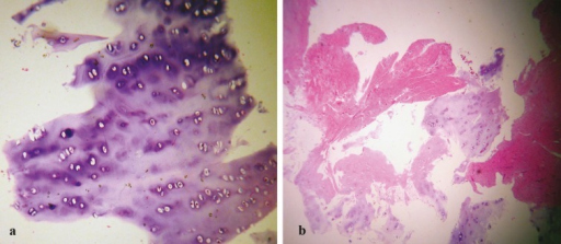 a: Shaved cartilagenous tissue fragments with preserved lacunae, including chondrocytes, associated with normal architecture and usual staining of chondroid matrix. b: Crushed cartilage tissue fragments, with damaged lacunae, some of them devoid of chondrocytes, associated with damaged and degenerated cartilagenous matrix with some induced tearing