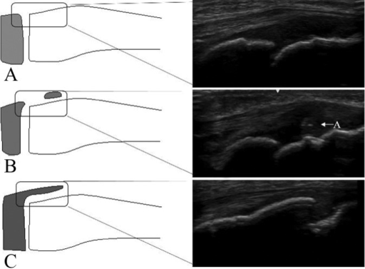 Ultrasound images of knees that are representative of the 3 stages of the maturation process of the patellar tendon attachment. (A) Stage C, (B) stage A, and (C) stage E. A, apophyseal cartilage.