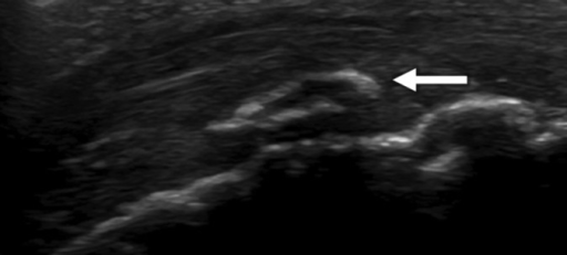 A longitudinal ultrasound image of the tibial tuberosity. The image shows fragmentation of the bone (arrow).