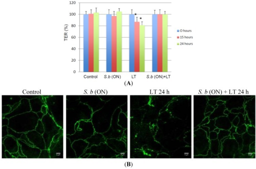 Protective effect of S. boulardii on LT-induced epithelium disruption. (A) Trans-epithelial resistance (TER) was measured at different time points in: control T84 monolayers (Control), T84 monolayers incubated overnight with S. boulardii alone (S.b (ON)), T84 monolayers incubated with LT alone (LT) and T84 monolayers incubated overnight with S. boulardii prior to the incubation with LT for 24 h (S.b (ON) + LT). TER values are displayed as percentages of initial values (n = 3). An asterisk denotes a significant difference versus control cells (p < 0.05, n = 3 independent experiments); (B) ZO-1 distribution was visualized in T84 monolayers control (control), incubated overnight with S. boulardii alone (S.b (ON)), monolayers incubated with LT alone for 24 h (LT 24 h), or monolayers incubated overnight with S. boulardii prior to the incubation with LT for 24 h (S.b (ON) + LT 24 h).