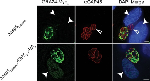 Complementation of Δasp5 parasites restores export of GRA24.Localisation of transiently transfected GRA24-Myc3 of in both Δasp5CRISPR and Δasp5CRISPR:ASP5WT-HA3 (Clone 1) tachyzoites. Filled arrowheads signify the position of host nuclei (DAPI), open arrowheads identify non-transfected parasites and GAP45 marks the periphery of tachyzoites. Scale bar is 5 μm. DAPI, 4',6-diamidino-2-phenylindole; HA3, triple-hemagglutininDOI:http://dx.doi.org/10.7554/eLife.10809.016