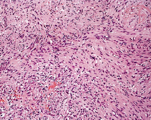 A histology slide of the resected tumour (schwannoma, WHO G1) showing spindle-shaped cells with band-like nucleiThe cells tend to form palisade patterns where the nuclei are seen on the same level in the palisade. This microscopic feature is significant for these tumours (haematoxylin and eosin [H & E], original magnification x40).