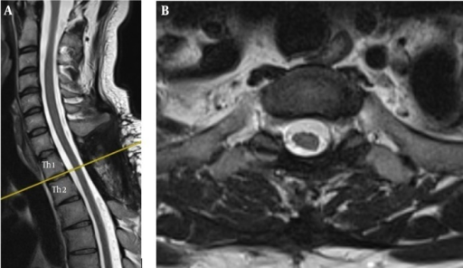 Post-Operative MRI (six months after the operation)Showing status post complete resection of the tumour, with the transverse view revealing a normal volume of the spinal cord where it had been displaced by the tumour.