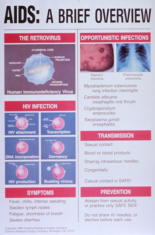 <p>Predominantly white poster with black and white lettering.  Title at top of poster.  Visual images are color illustrations and photo reproductions depicting the HIV virus, the process of infection, and examples of common opportunistic infections (Kaposi's sarcoma, pneumocystis pneumonia).  Additional text on poster explains symptoms, transmission, and prevention strategies.  Publisher information in lower left corner.</p>