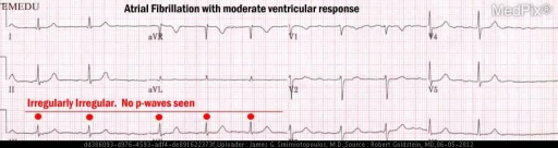"The heartbeat is ""irregularly irregular"" - most consistent with atrial fibrillation."