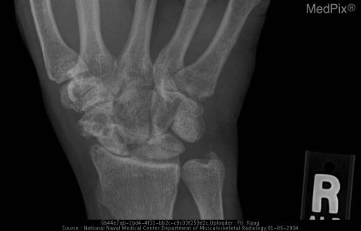 Both wrists demonstrate narrowed radioscaphoid joint space, widening of the scapholunate joint space with degenerative changes and debris, and proximal migration of the capitate, consistent with scapholunate advanced collapse.  The bilateral osteoarthritis of the radioscaphoid joints and faint calcification at the region of the triangular fibrocartilage at the left wrist are all characteristic of calcium pyrophosphate dihydrate deposition disease.