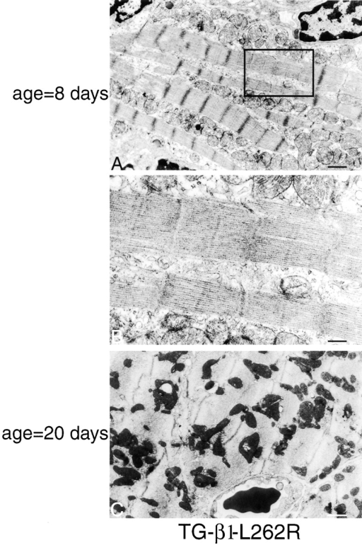 Progressive disorganization. Myofibrils from TG-β1L262R mice (line 2) show progressive disorganization, with milder defects at early times (A and B higher magnification) and poor myofibrillar organization by day 20 (C). Bars, (A and C) 1.1 μm; (B) 0.35 μm.