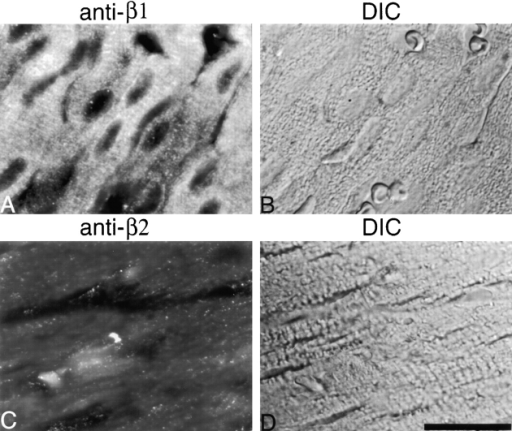 Immunofluorescence staining of the CPβ isoforms (A and C) and corresponding DIC images (B and D) in sections of wild-type hearts. The β1 isoform localizes predominantly to the Z-lines (A). The β2 isoform localizes to intercalated discs and in a punctate pattern at cell–cell junctions (C). Bar, 5 μm.