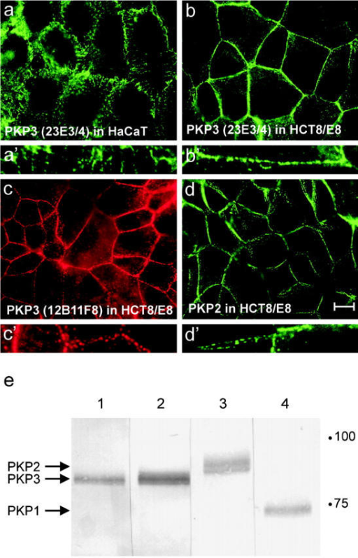 Immunodetection of PKPs using different mouse mAbs. PKP3, detected with mAb 23E3/4 (a and b), 12B11F8 (c), or PKP2 (d) show a similar expression pattern along cell–cell contacts in methanol-fixed HaCaT (a) and HCT8/E8 (b–d) cells. Larger magnifications display the punctate localization of these proteins along cell–cell contacts (a′–d′). Bar, 10 μm. (e) Western blot detection of PKP3 (lane 1, mAb 12B11F8; lane 2, 23E3/4), PKP2 (lane 3), and PKP1 (lane 4) in HaCaT protein lysates. Equal amounts of protein were loaded in each lane.