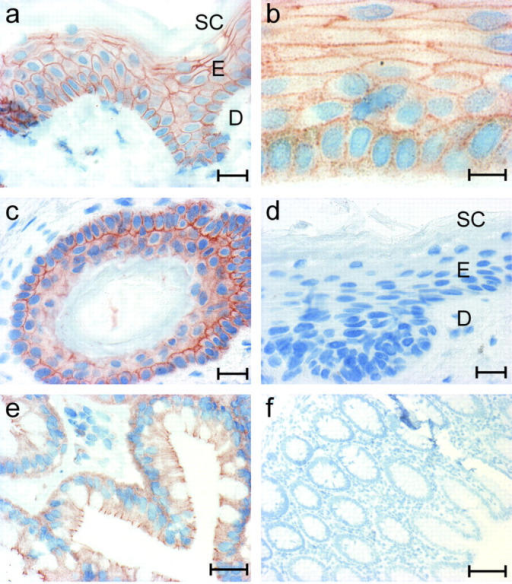 Immunohistochemical detection of PKP3 in paraffin sections of formalin-fixed human skin and colon using mAb 23E3/4. PKP3 is expressed in the living cell layers of the epidermis, but not in the stratum corneum and the dermis (a). At higher magnification, the interrupted PKP3 localization along cell–cell contacts is visible (b). The epidermal cells of the hair root also express PKP3 (c); no signal can be detected in the negative control sections, in which the primary antibody was omitted (d). PKP3 is expressed in simple colon epithelium (e); no signal is observed in the negative control sections (f). SC, stratum corneum; E, epidermis; D, dermis. Bars: 20 μm (a and c–e), 10 μm (b), and 100 μm (f).
