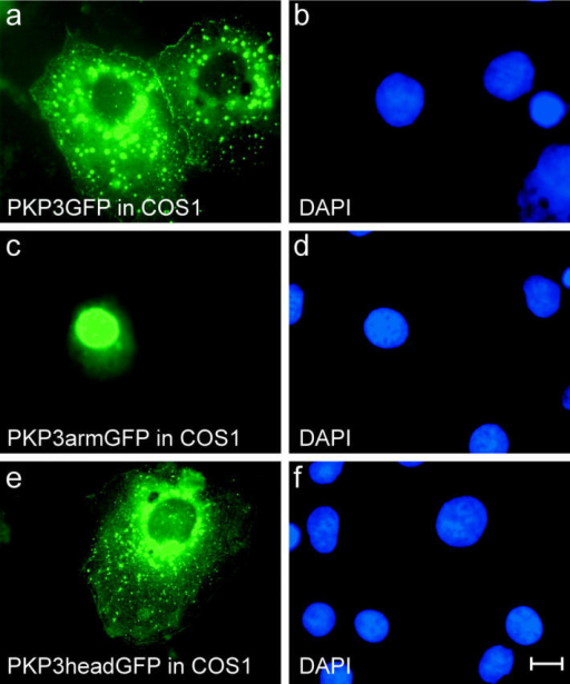 Intracellular localization of exogenous GFP-tagged PKP3 fragments in COS1 cells. Full-length PKP3 localizes at sites of cell–cell contact, and cytoplasmic aggregates are also observed (a). PKP3arm and head fragments localize predominantly in nucleus (c) and cytoplasm (e), respectively. Control DAPI stainings are shown (b, d, and f). Bar, 10 μm.