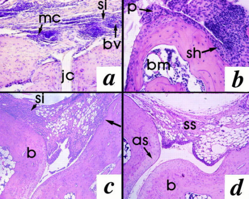 The effects of MCP-1 antagonist on the joint histopathology. Representative photomicrographs of histology from the experiment in Fig. 1  a are shown. For the control group: (a) marked subsynovial infiltration by mononuclear cells resembling rheumatoid nodule formation (×20 objective);  (b) pannus formation and synovial hyperplasia (×40) objective; (c) bone erosion (arrow; ×20 objective). For the antagonist (2.0 mg/kg) -treated group: (d)  indicates some stromal thickening of the subsynovium, but absence of infiltrating cells or joint destruction (×20 objective). as, articular surface; b, bone;  bm, bone marrow; bv, blood vessel; jc, joint cavity; mc, mononuclear cell infiltrate; p, pannus; sh, synovial hyperplasia; si, subsynovial inflammation; ss,  subsynovium.