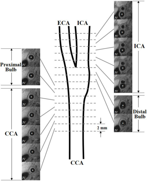 Schematic Diagram Of The Coverage For Each Segment Of T Open I